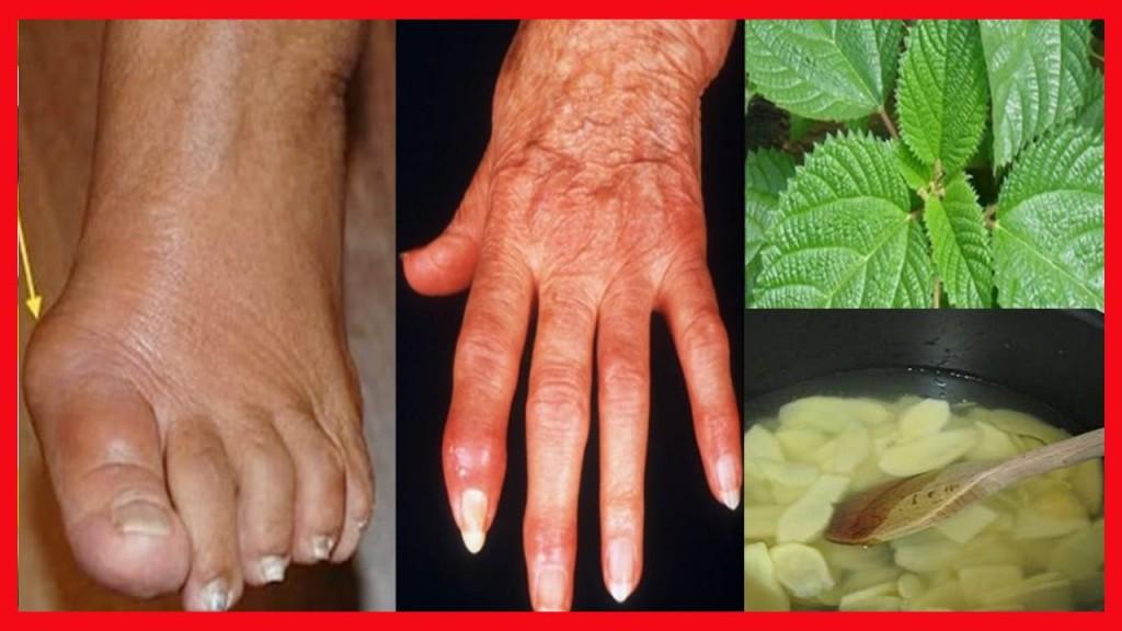 como combater a artrite naturalmente