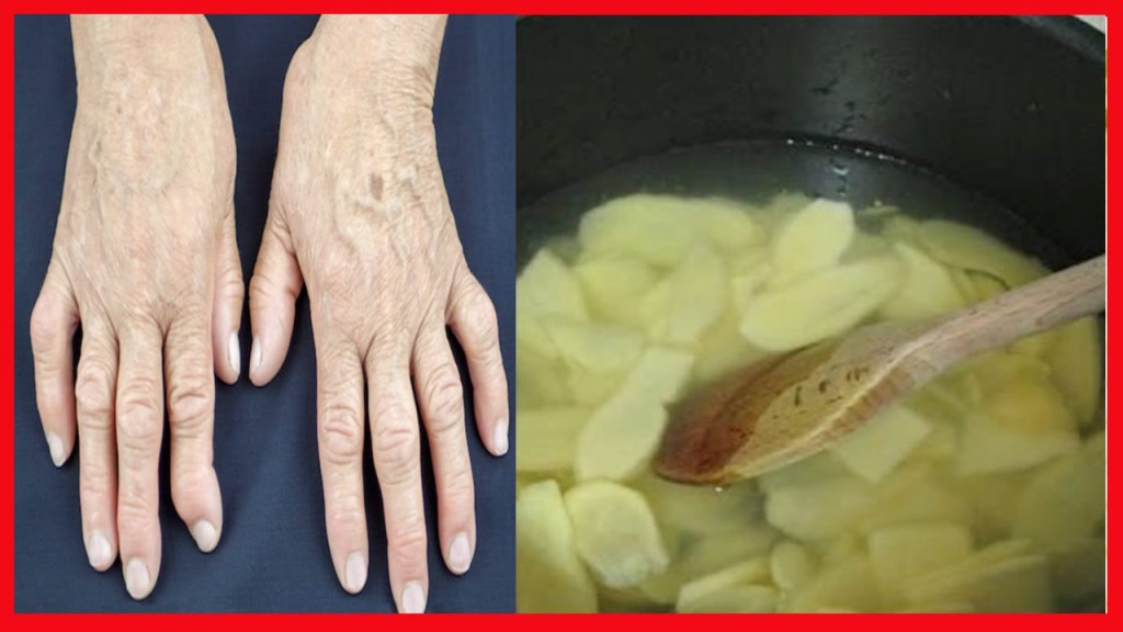 tratar artrite naturalmente