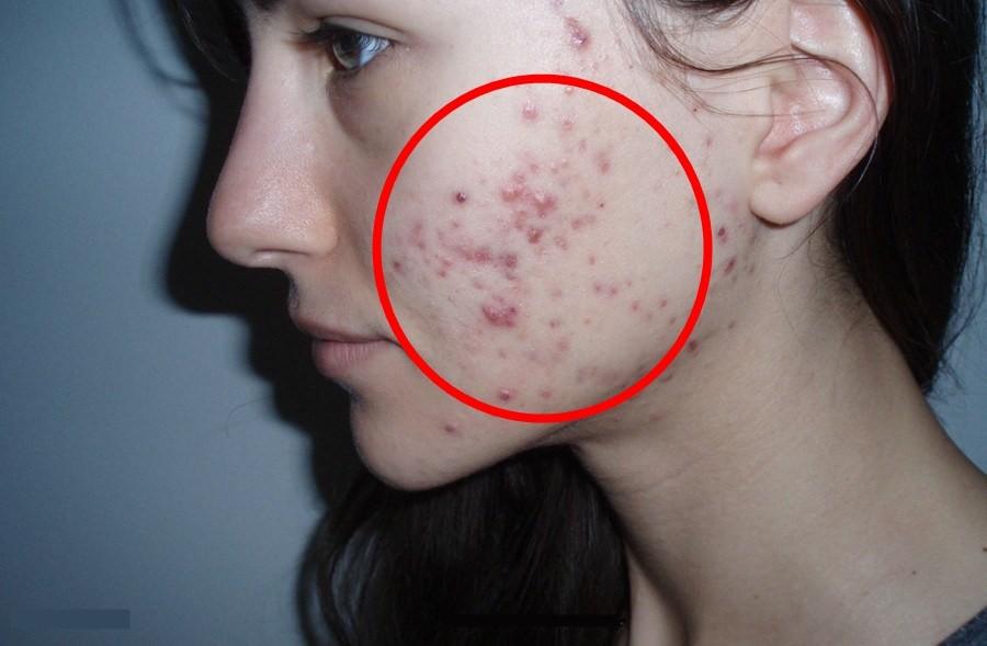 tratar acne cistica