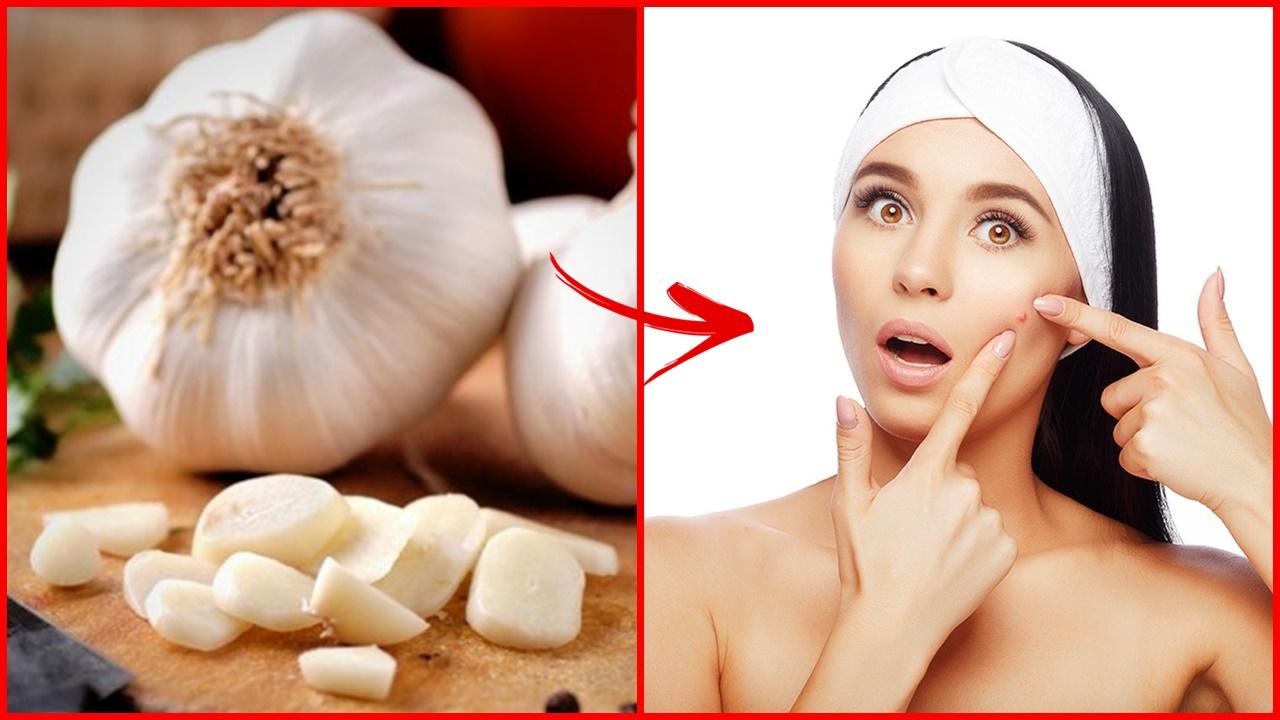 Tratar a acne com apenas 1 ingrediente