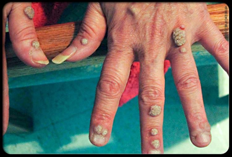 sintomas das verrugas