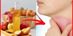 vinagre de maca para dor de garganta