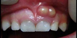 abscesso dentario