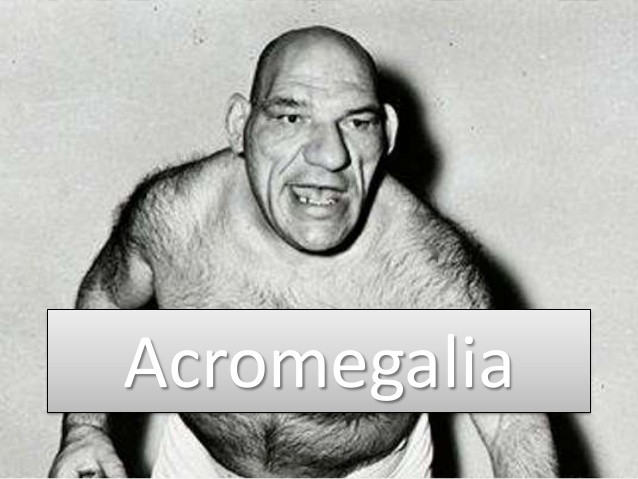 acromegalia o que e
