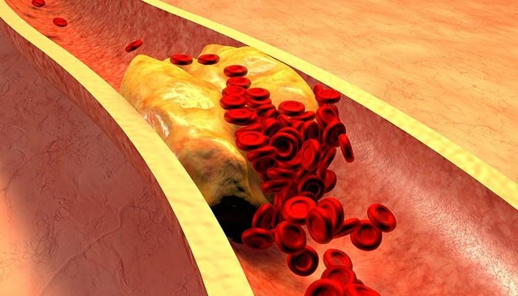 alimentos para baixar o colesterol