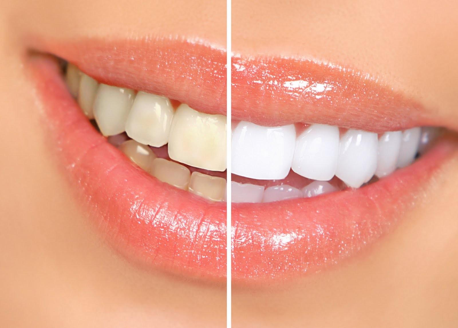 alimentos que ajudam a ter dentes brancos e saudáveis