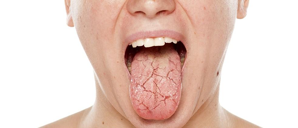 causas da boca seca