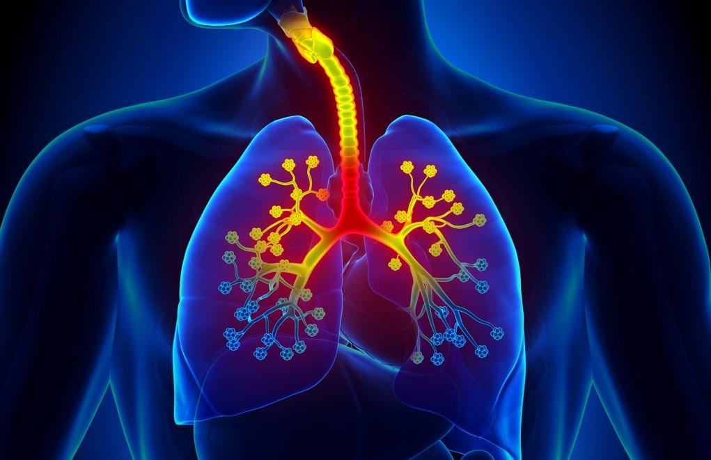 tratamento natural para bronquite