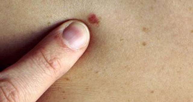 o que e carcinoma basocelular