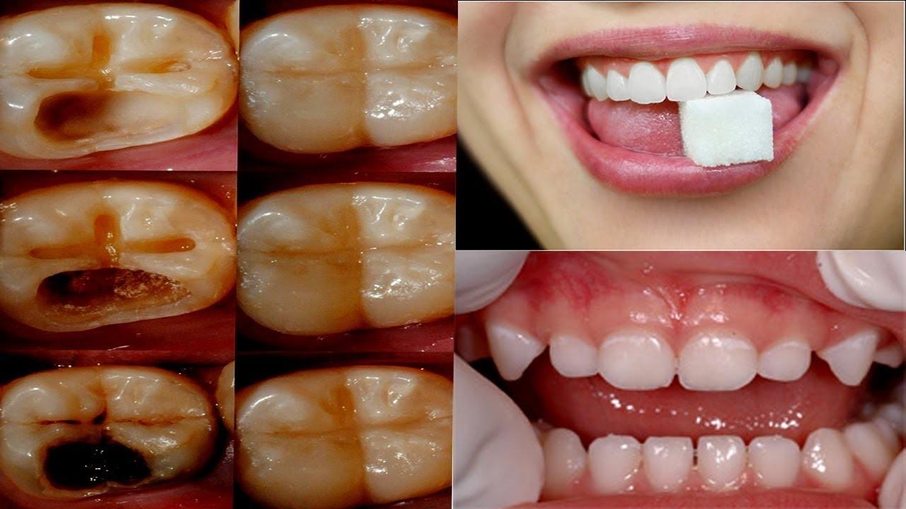 cárie dentária