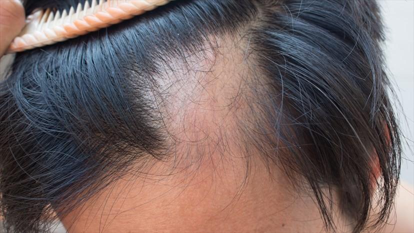 como prevenir alopecia