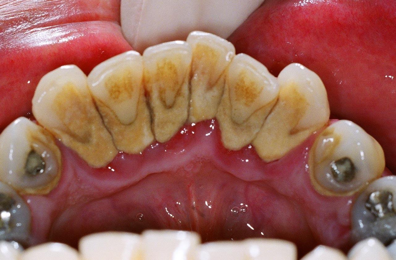 causas da carie dentaria