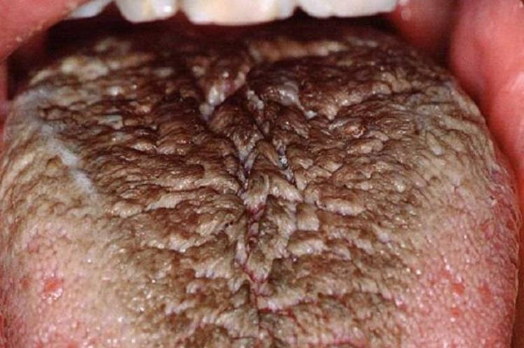 causas da lingua negra cabeluda