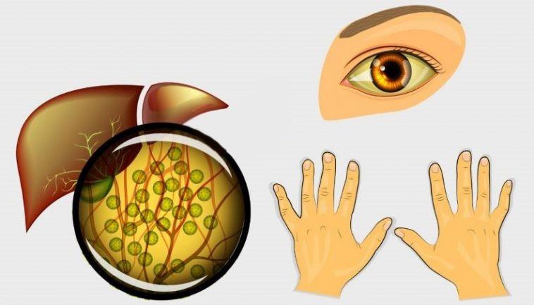 causas da paludismo