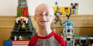 causas da progeria