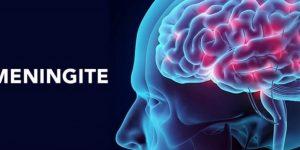 causas de meningite