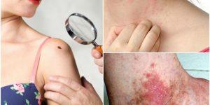 sinais para você identificar o câncer de pele