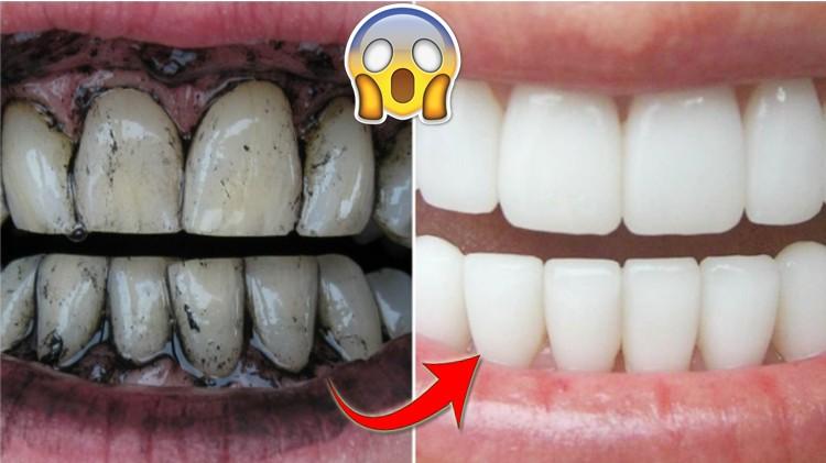 remédios caseiros para clarear os dentes naturalmente