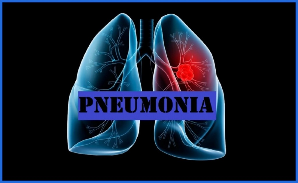 Remédios Caseiros Para Combater Pneumonia