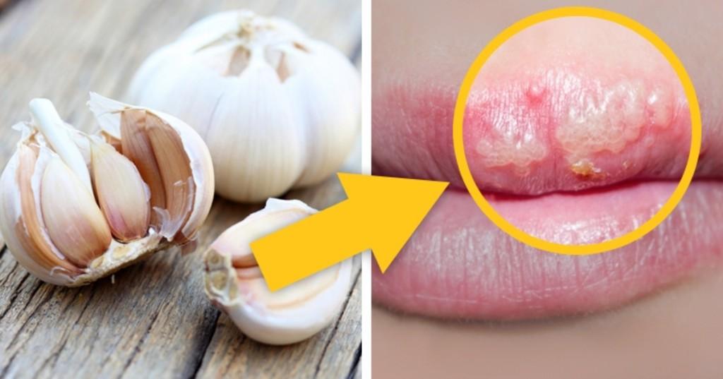 como acabar com herpes labial