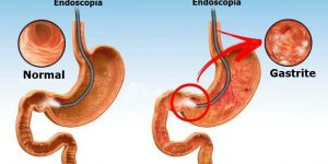 como aliviar os sintomas da gastrite