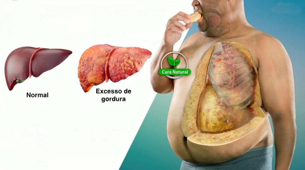 como eliminar a gordura no fígado em 8 dias?