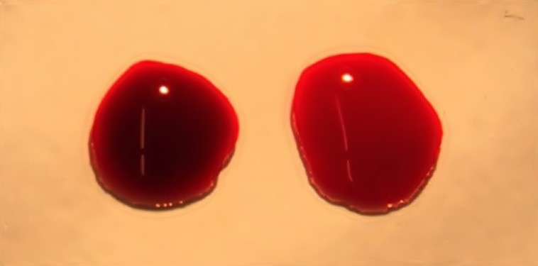 como limpar o sangue em apenas 8 dias?