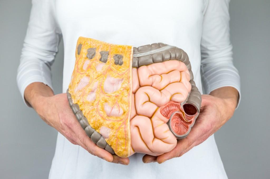 como melhorar o funcionamento do intestino