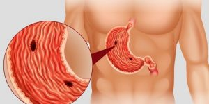 como tratar úlcera de estômago naturalmente?