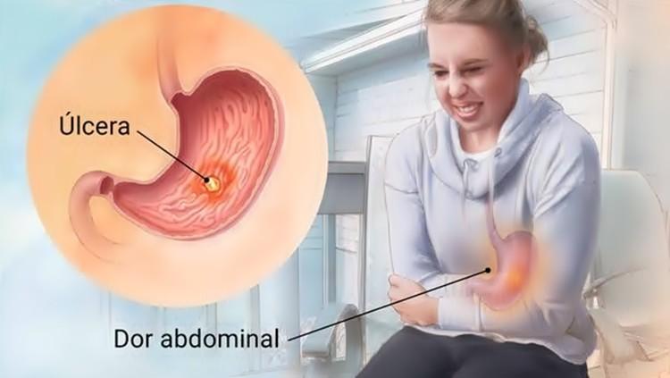 como tratar úlcera gástrica rapidamente?