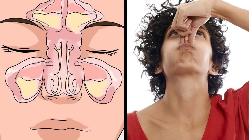 congestao nasal