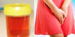 o que a cor da sua urina diz sobre sua saude