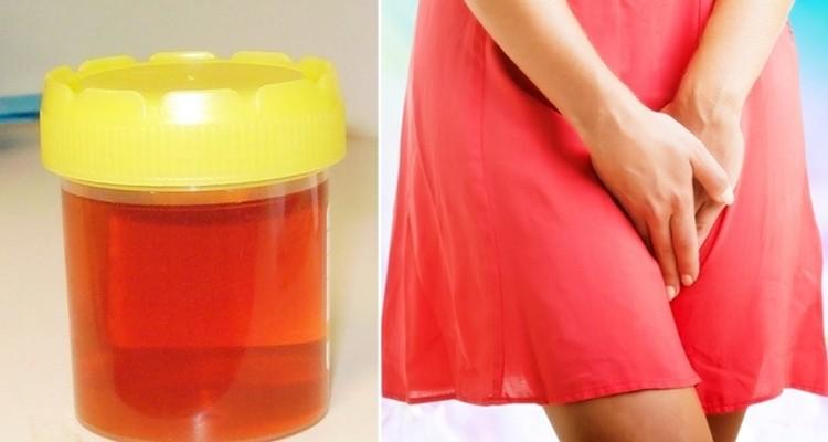 O que a Cor da Sua Urina Diz Sobre sua Saúde