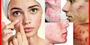 cuidados com a pele para prevenir a acne cistica