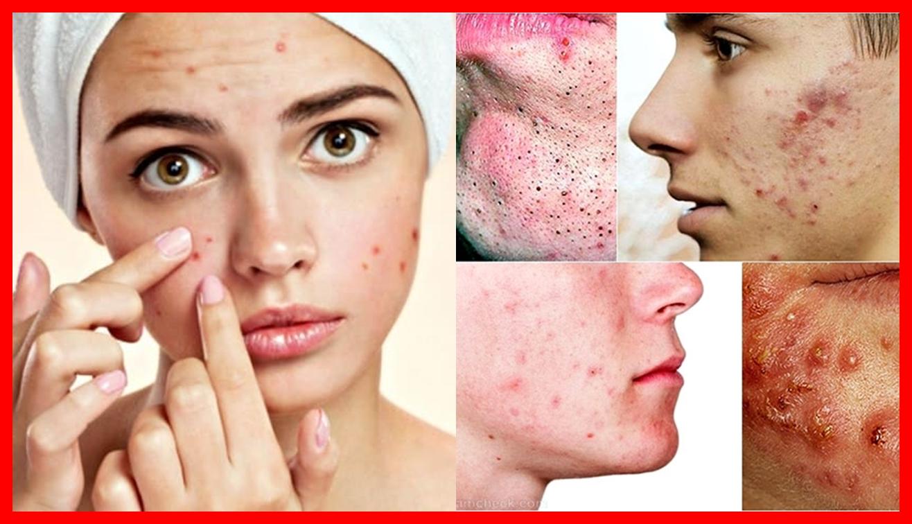 Os 10 Cuidados com a Pele Para Prevenir a Acne Cística