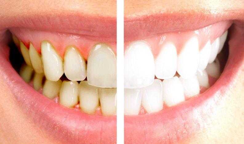 ter dentes brancos e saudáveis
