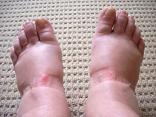 curar edema nas pernas