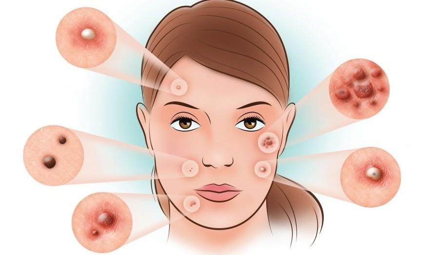 7 dicas caseiras para eliminar acne naturalmente que você tem que usar