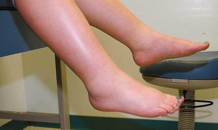 dicas caseiras para curar edema nas pernas