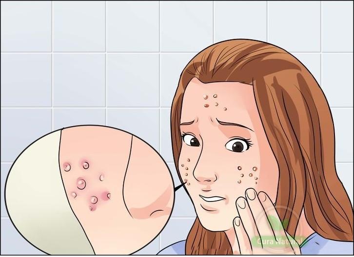 receitas com sal de epsom para eliminar acne