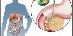 eliminar calculos biliares