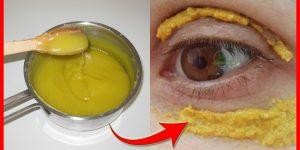 eliminar circulos escuros nos olhos