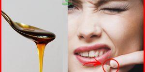eliminar espinhas usando mel