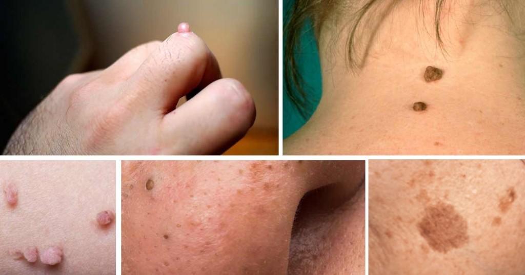 remédios caseiros para remover verrugas