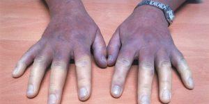principais sintomas da esclerodermia