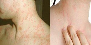 quais os sintomas da feridas de frio?