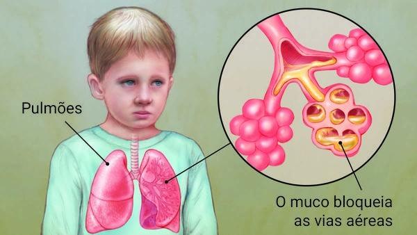 fibrose cistica