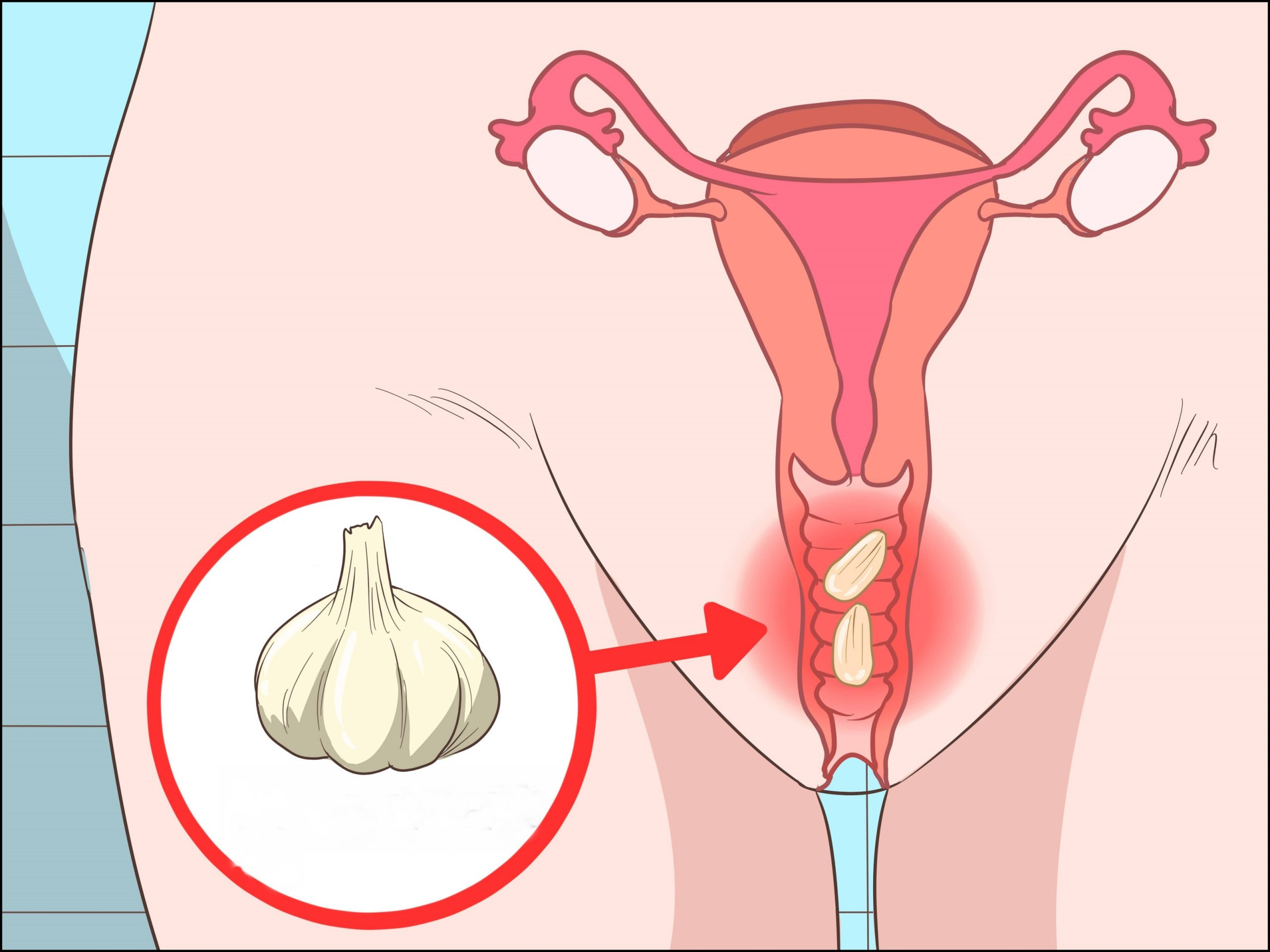 eliminar os fungos vaginais