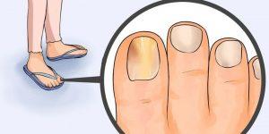 remédios caseiros para eliminar os fungos nas unhas