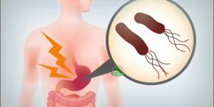 características dos tipos de gastrite